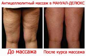 Антицеллюлитный массаж в МАНУАЛ-ДЕЛЮКС