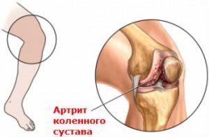 Артрит Лечение Киев