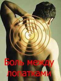 Боль между лопатками Лечение Киев