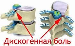 Дискогенная боль Лечение Киев