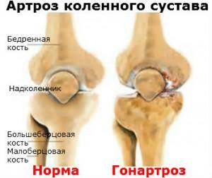 Гонартроз Лечение Киев