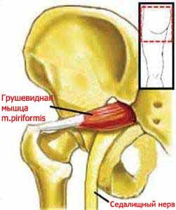 Грушевидная мышца (лат. Musculus piriformis)
