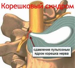 Корешковый синдром Лечение Киев