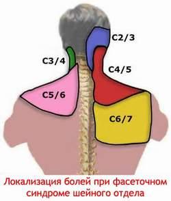 Локализация болей при фасеточном синдроме шейного отдела
