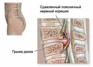 Межпозвонковая грыжа Лечение Киев