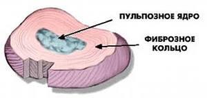 Межпозвонковый (межпозвоночный) диск