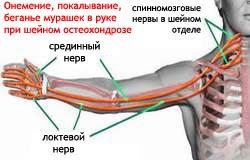 Онемение, покалывание, бегание мурашек в руке при шейном остеохондрозе