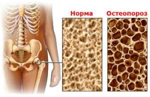 Остеопороз Лечение Киев