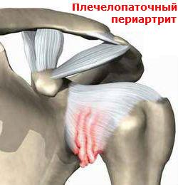 Плечелопаточный периартрит Лечение Киев