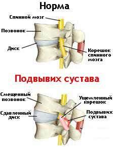 Подвывих позвоночного (фасеточного) сустава
