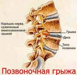 Позвоночная грыжа Лечение Киев