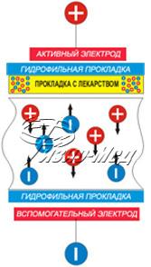 Принцип действия электрофореза