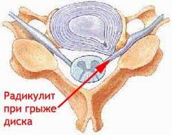 Радикулит при грыже диска