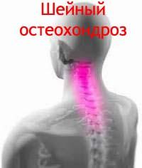 Шейный остеохондроз Лечение Киев