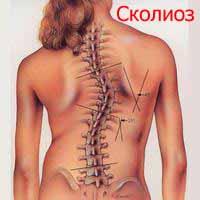 Сколиоз Лечение Киев
