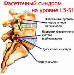Фасеточный синдром Лечение Киев