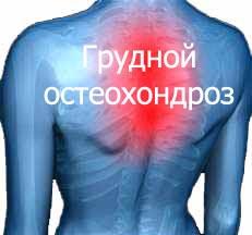 Грудной остеохондроз Лечение Киев