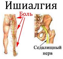 Ишиалгия Лечение Киев