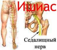 Ишиас Лечение Киев