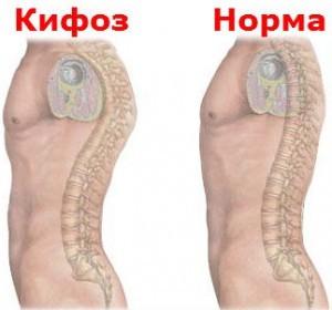 Кифоз Лечение Киев