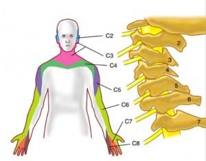 Клинические проявления цервикобрахиалгии