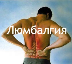 Люмбалгия Лечение Киев