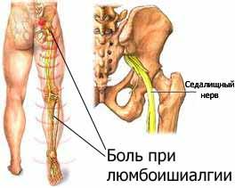 Люмбоишиалгия Лечение Киев