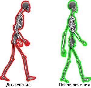 Мануальная терапия: до и после лечения