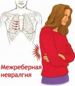 Межреберная невралгия Лечение Киев