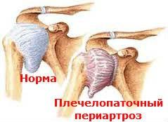 Плечелопаточный периартроз Лечение Киев