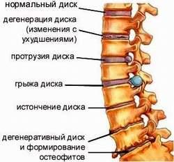 Протрузия диска Лечение Киев