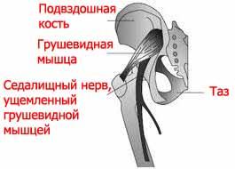 Седалищный нерв, ущемленный грушевидной мышцей