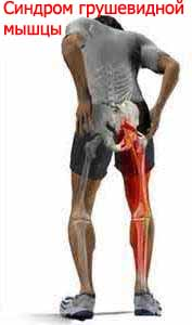 Синдром грушевидной мышцы Лечение Киев