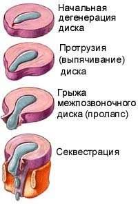 Стадии формирования межпозвоночной грыжи