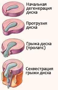 Связки позвоночника человека