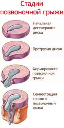 Онемение пятки после операции удаления межпозвоночной грыжи
