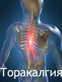 Торакалгия Лечение Киев