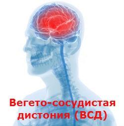 Вегето-сосудистая дистония (ВСД) Лечение Киев